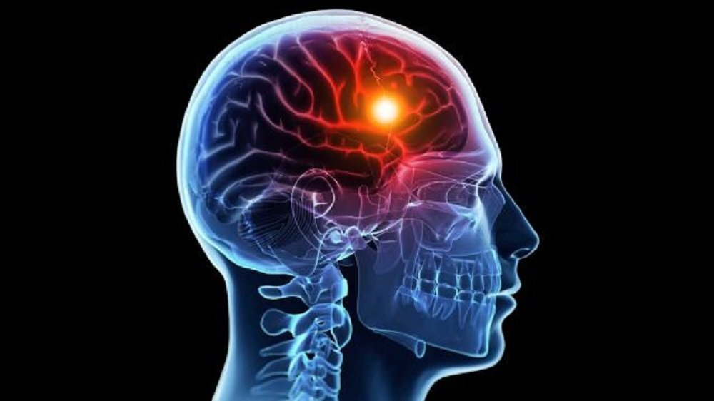 10 Best Nootropics for Stroke Recovery (Recently Updated)