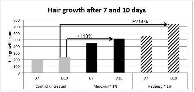 Redensyl grows hair 1.8 times faster than minoxidil