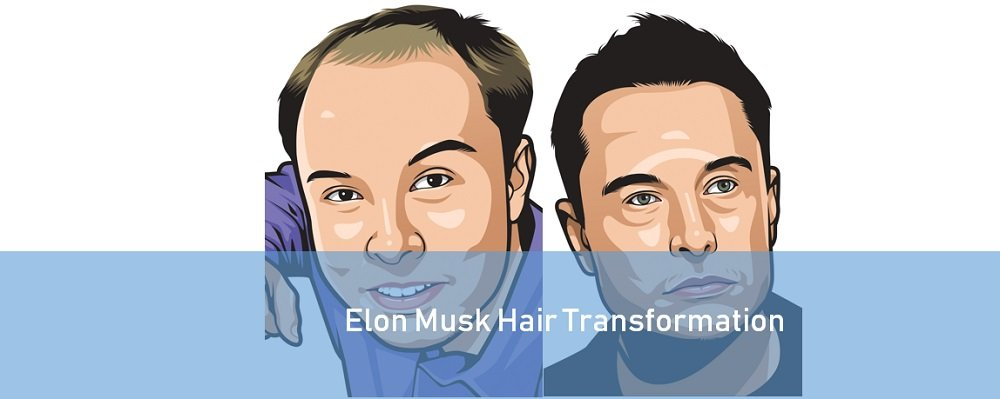 Elon Musk Hair Before and After Caricature