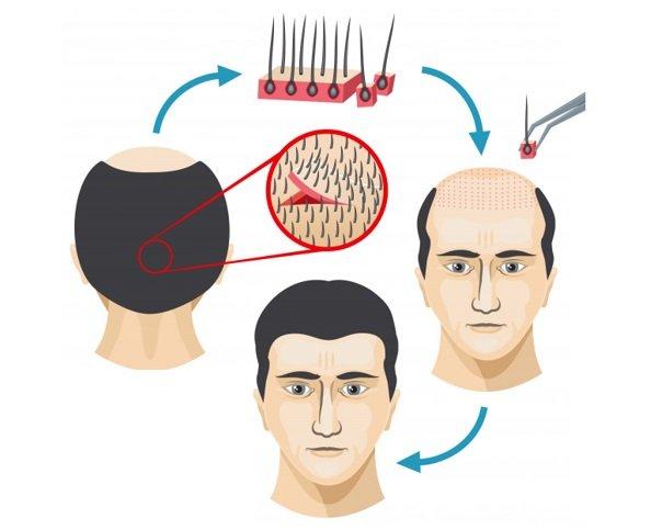 Elon Musk FUT Hair Transplant Process?