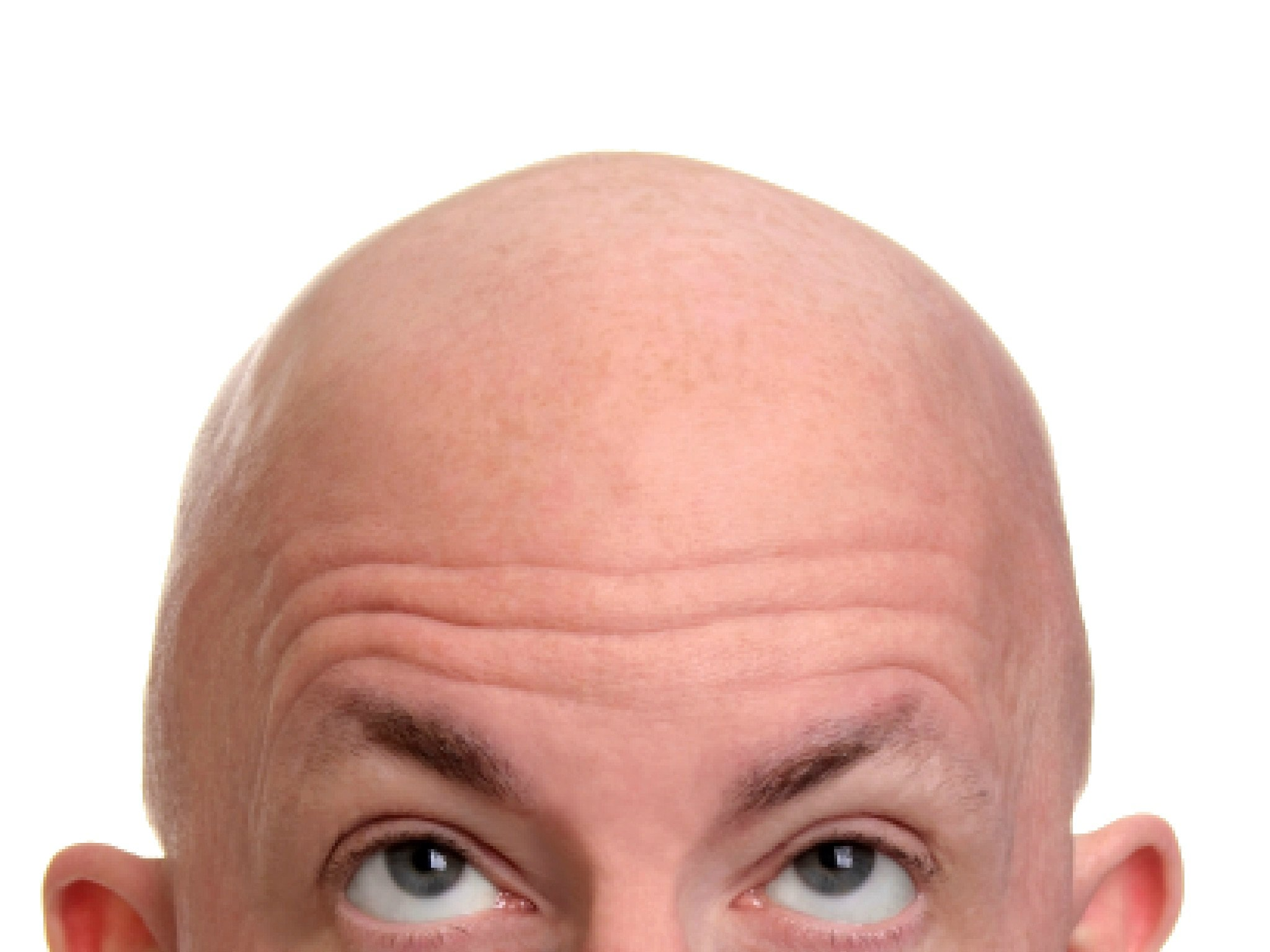 Insecure bald man